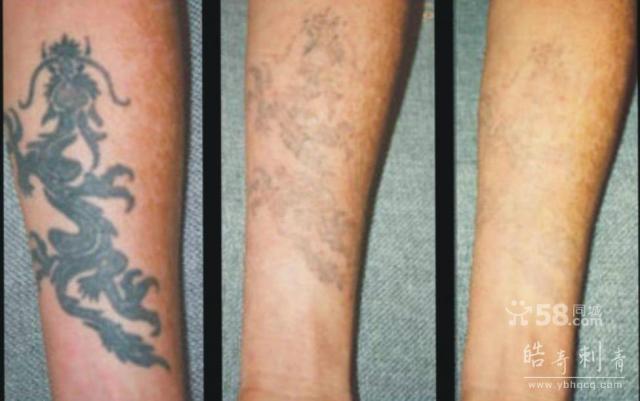 激光去除纹身青岛那里洗纹身最好图片|激光去除纹身