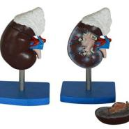 肾解剖附肾上腺模型图片