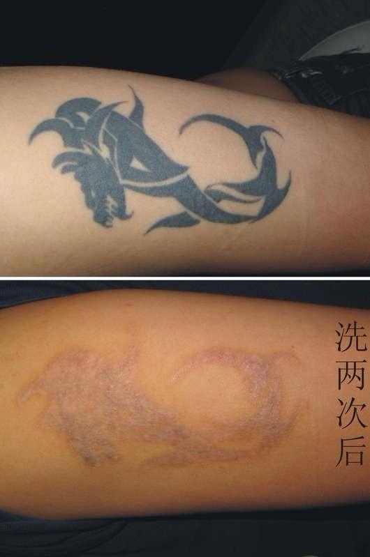 供应霹雳神剑系列蜗牛激光洗纹身机