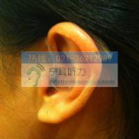 上海闵行七宝瑞声达折扣品牌助听器